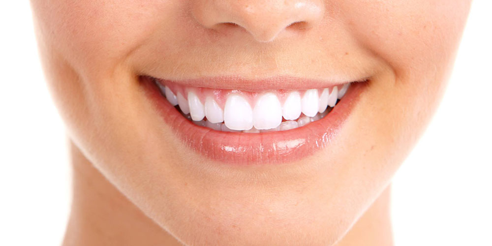 Cosmetic Bonding, A Modern Smile Therapy