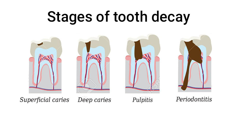 Tooth decay, the stages of the carries attack... and No, it does not always hurt!